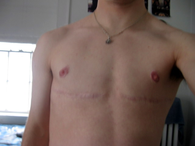 4 years post-op
